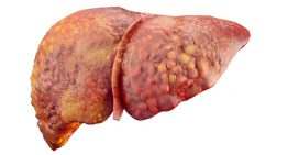 What's the Biggest Cause of Fatty Liver Disease?