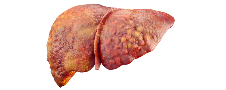Liver_infected_rsz