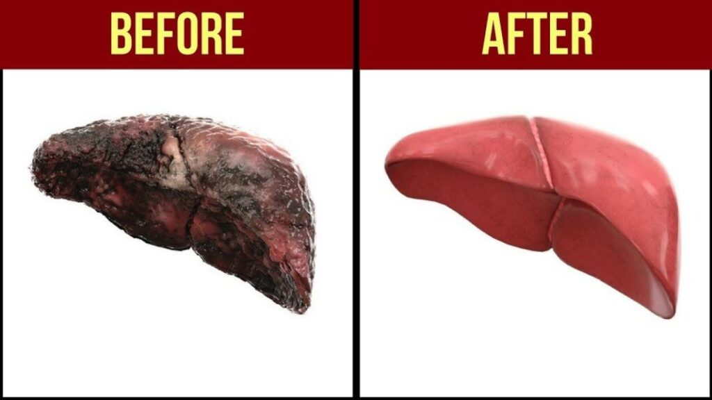 What To Expect During And After Your Liver Cleanse