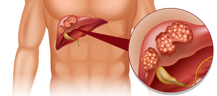 liver-failure