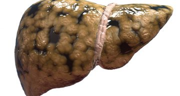 MSG Linked To Obesity And Fatty Liver Disease